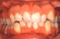 Affollamento dentale