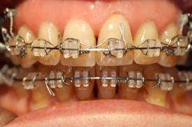 caso2_trattamento_centrale