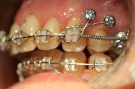 caso2_trattamento_dx